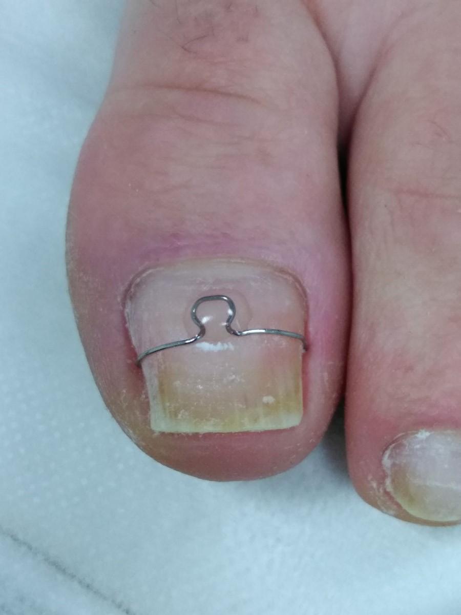 Opracowywanie wrastających paznokci Warszawa